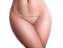 Cirurgia de Elevação de Monte de Vênus