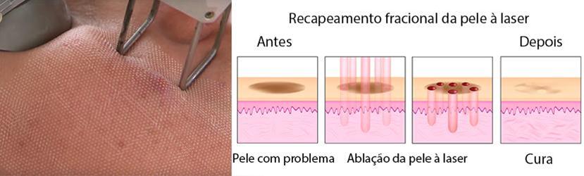 Fisiologia do Procedimento Laser