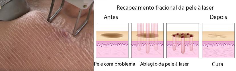 Ilustração Demonstrando o Funcionamento do Laser na Pele