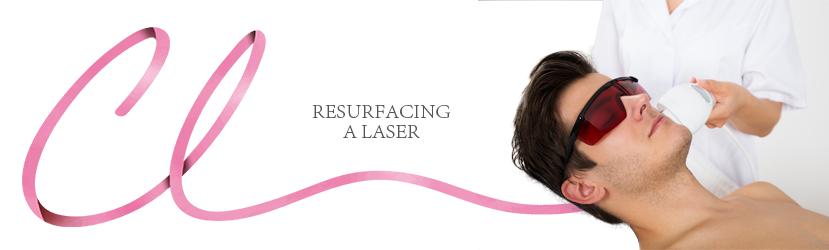Resurfasing a Laser