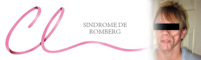 Síndrome de Romberg