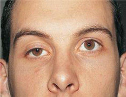 Cirurgia de Ptose Palpebral