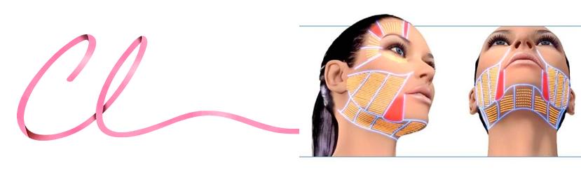 Ilustração de Áreas na Face Para a Utilização do Ulthera