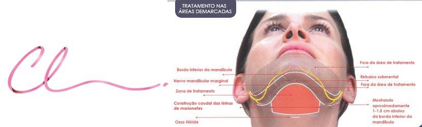 Ilustração Demonstrando a Região do Tratamento da Gordura Pré-Plastimal do Pescoço