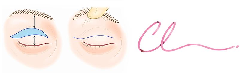 Ilustração de Cirurgia Realizada na Cirurgia de Blefaroplastia