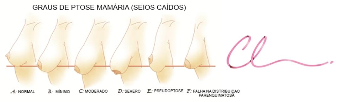 Ilustração dos Tipos de Ptose Mamaria