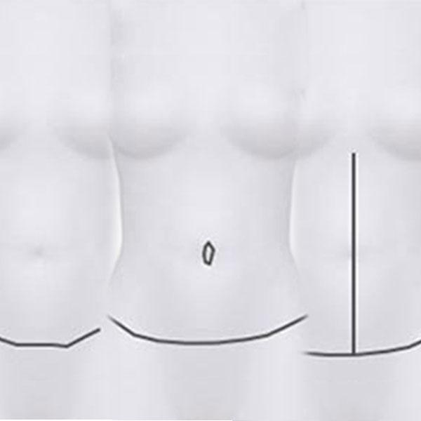 Resultado Definitivo Abdominoplastia