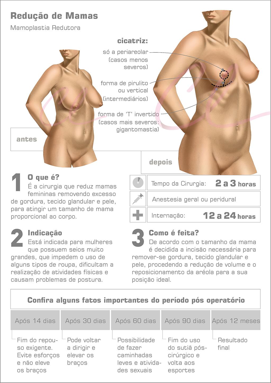 Cirurgia de Mamoplastia Redutora
