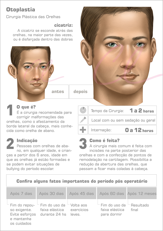Cirurgia de Orelha em Abano (Otoplastia)