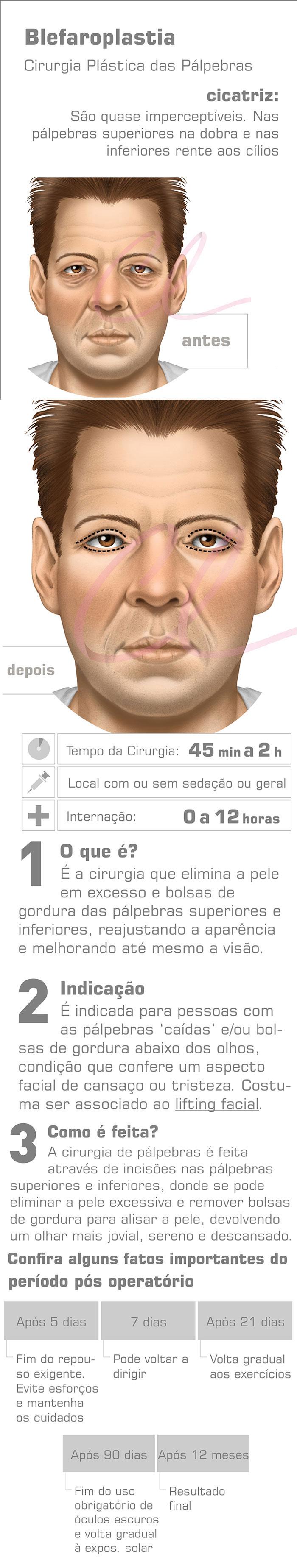 Cirurgia de Pálpebras (Blefaroplastia)