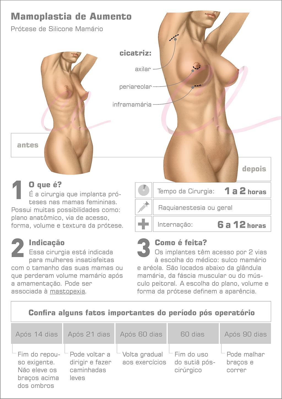 Cirurgia de Prótese de Mama