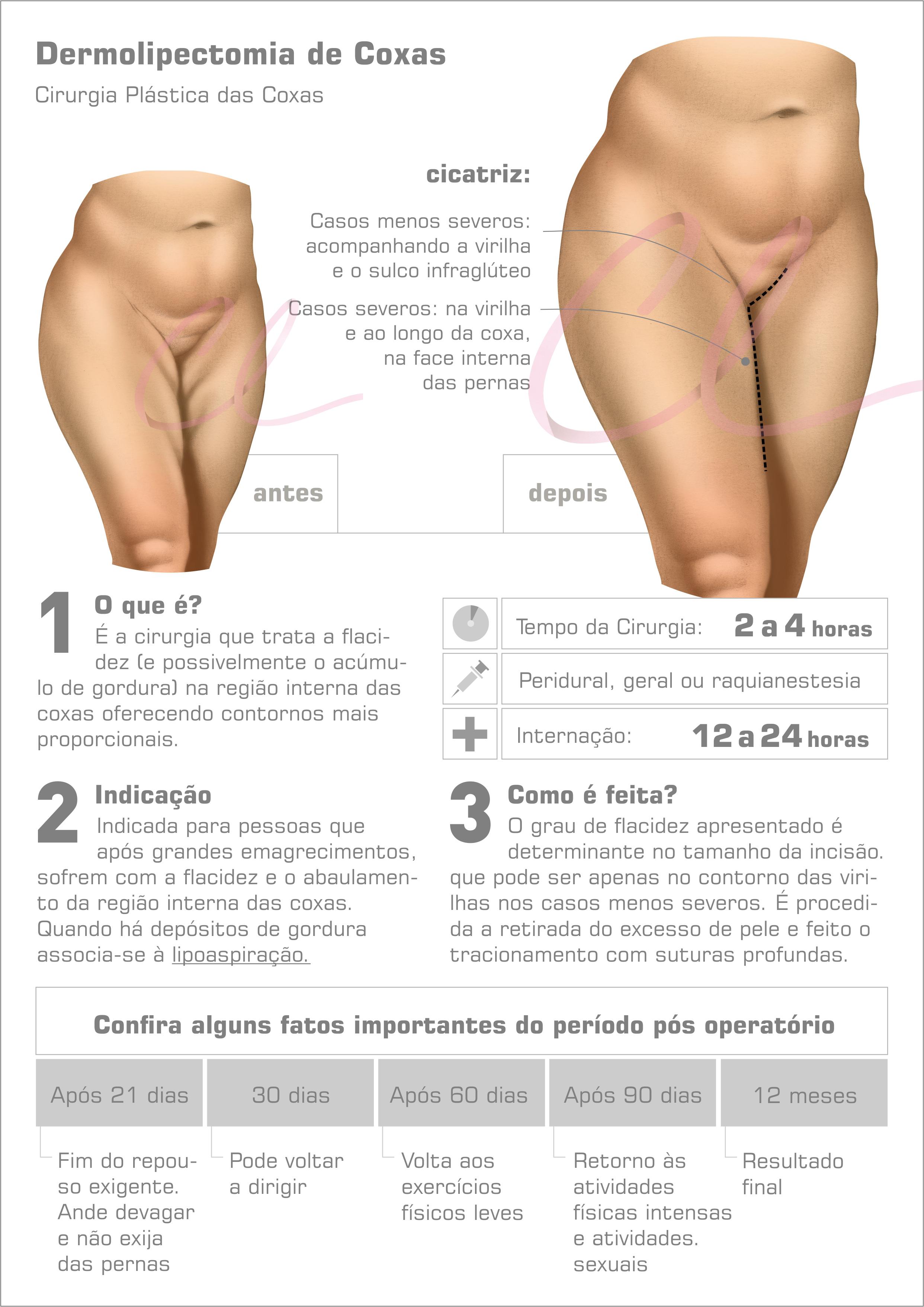Cirurgia Plástica nas Coxas - Lifting de Coxas