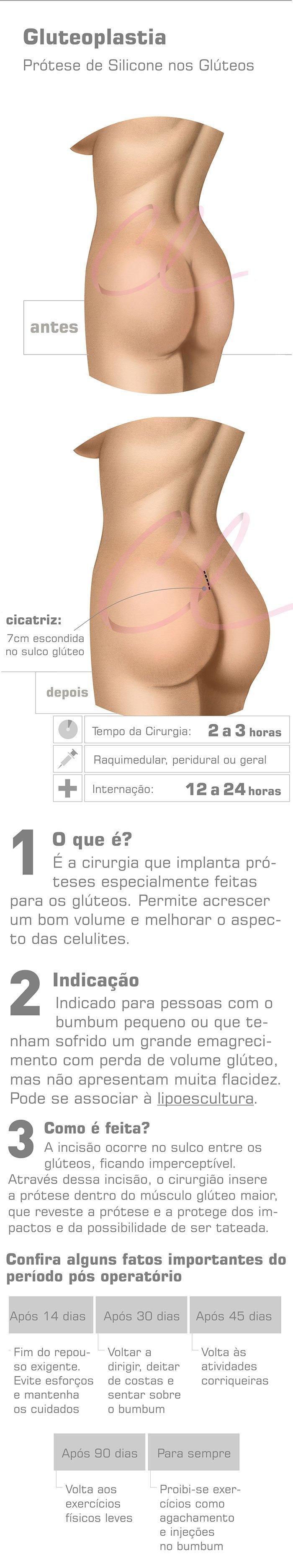 Ilustração com Resumo do Procedimento de Gluteoplastia