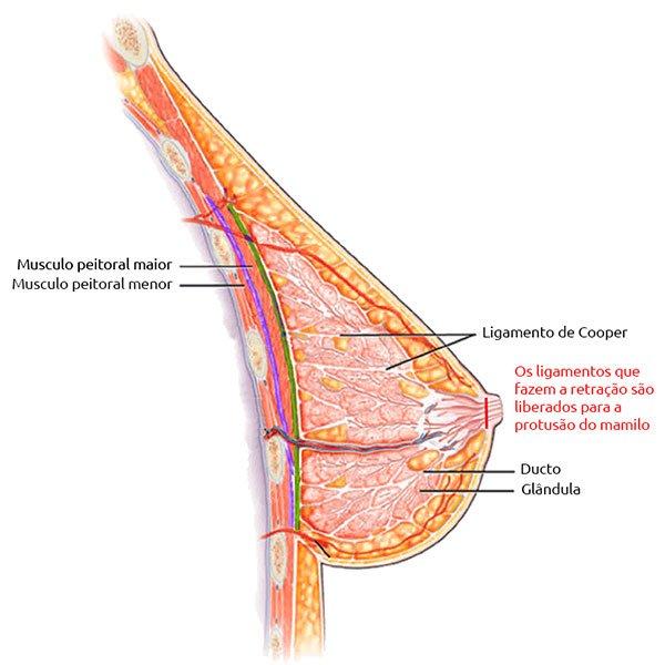 Ilustração da Anatomia dos Ligamentos que Devem ser Liberados Durante o Procedimento
