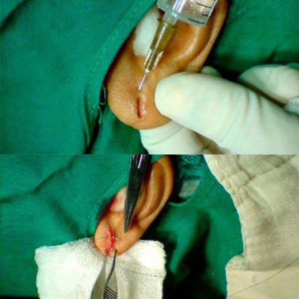 Anestesia Utilizada Durante o Procedimento