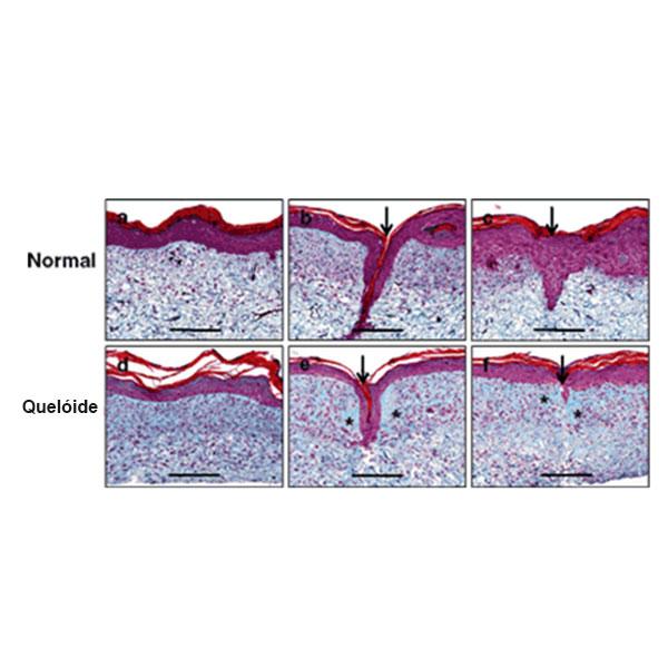 Ilustração Demonstrando a Cicatrização Normal e uma Cicatrização com Queloide
