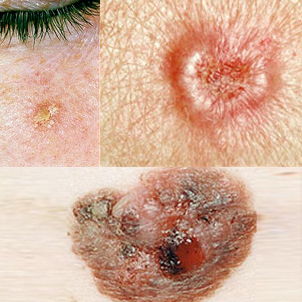 Tratamento do Câncer de Pele