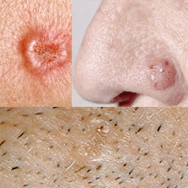 Características do Câncer de Pele