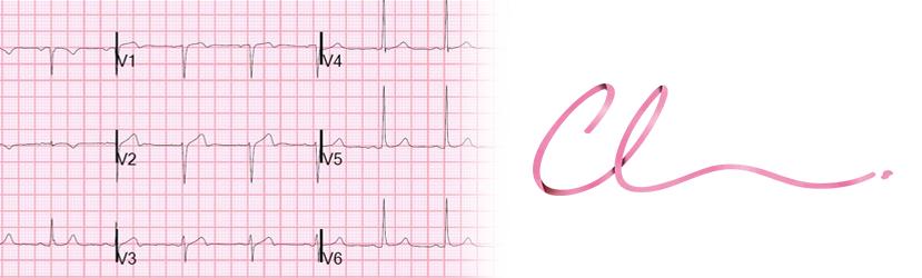 Ilustração do Exame de Eletrocardiograma, essencial a um Pré-Operatório