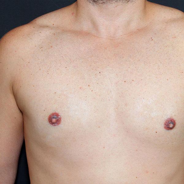 Anatomia Alterada dos Mamilos Masculinos Demostrando a Hipertrofia Bilateral