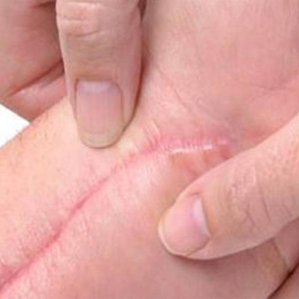 Cicatriz Hipertrófica