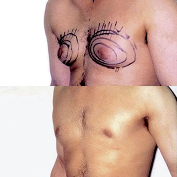 Ginecomastia - Antes e Depois