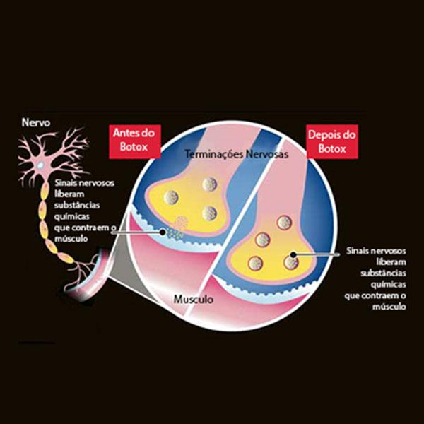 Ilustração Demonstrando o Mecanismo de Ação da Toxina Botulínica