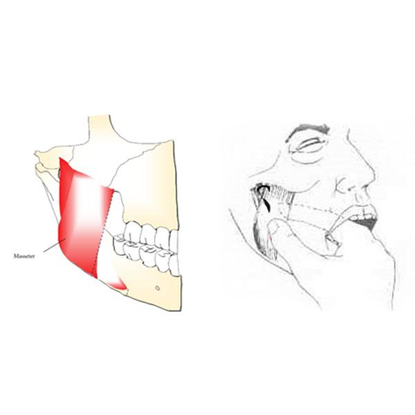 Método de Palpação do Músculo Masseter Intra e Extra Bucal