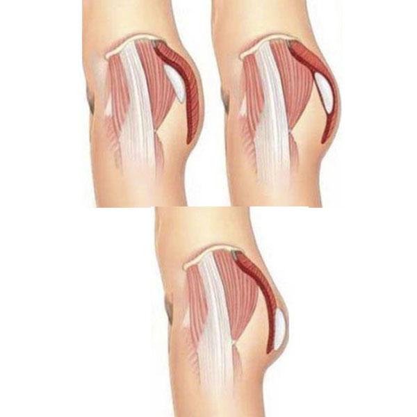 Posição do Implante de Glúteo