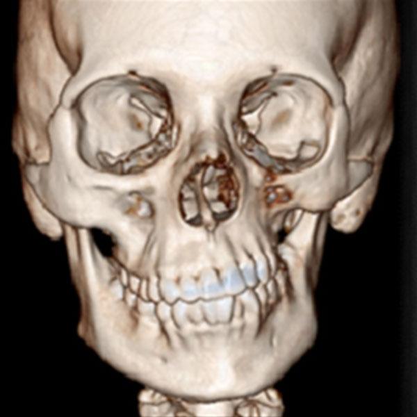 Tomografia Demostrando Atrofia da Hemiface Esquerda